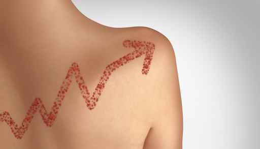Increase In Measles Cases_1557761254394